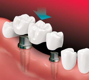 Implant-Supported Bridge 2