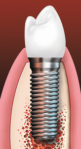 Dental Implants Crown