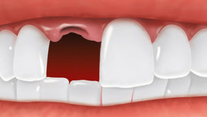 Dental Implants - Missing