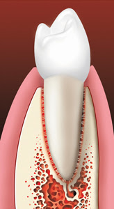 Dental Implants Natural Tooth