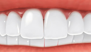 Dental Implants - Replaced