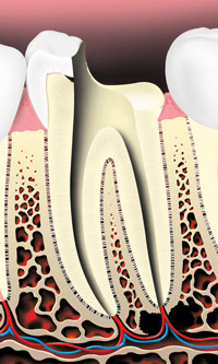 Root Canals 3