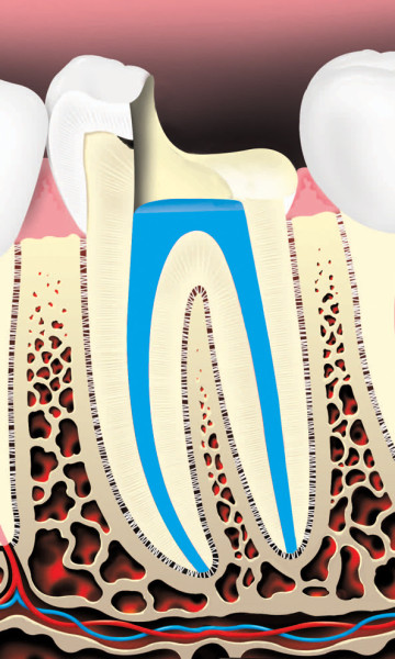 Root Canals 4
