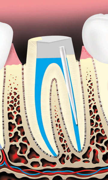 Root Canals 5