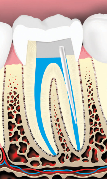 Root Canals 6